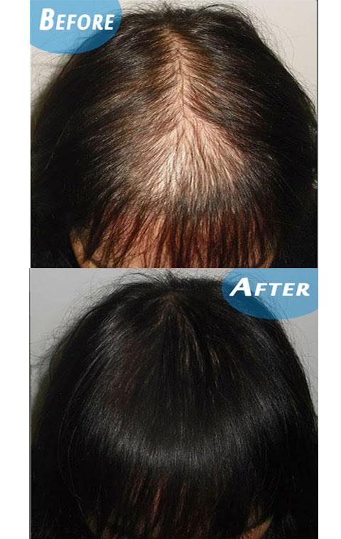 Best-hair-re-growt-serum