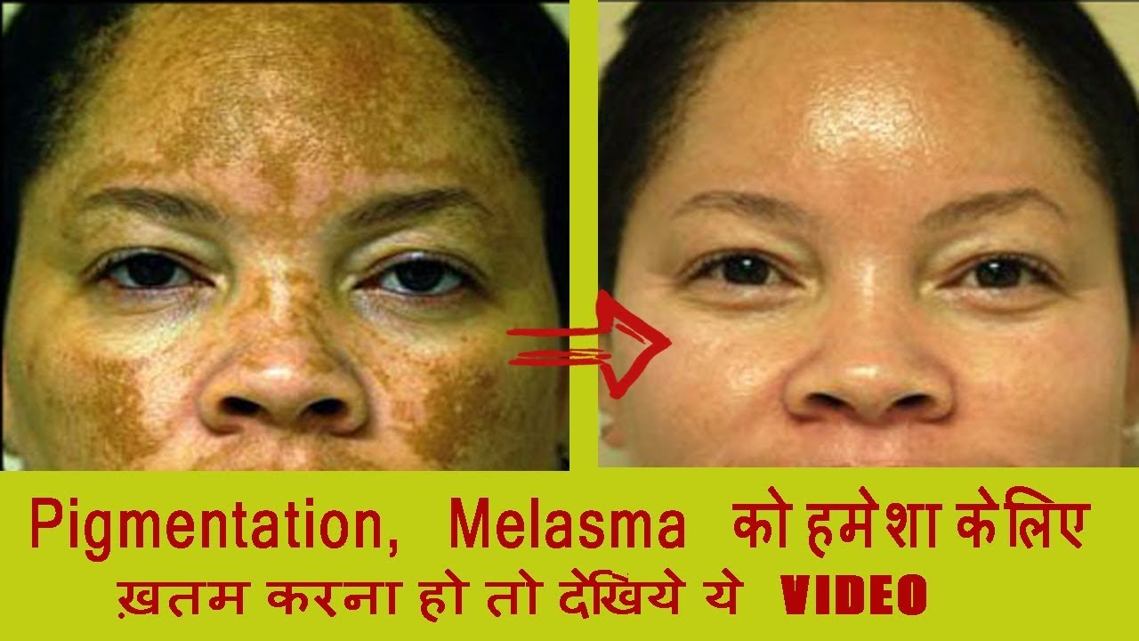 3-simple-home-remedies-pigmentation-hyper-pigmentation-brown-spots-discoloration-must-try